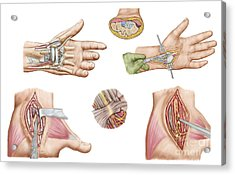 Medical Illustration Showing Carpal Acrylic Print by Stocktrek Images