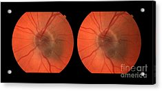 Melanoma Of The Optic Nerve Stereo Image Acrylic Print by Paul Whitten