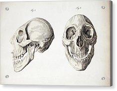 Microcephalic Skull Flores Man Zika Virus Acrylic Print
