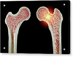 Normal And Fractured Hip Acrylic Print