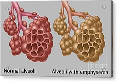 Normal Vs. Emphysematous Alveoli Acrylic Print