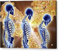 Osteoporosis Treatment With Antibodies Acrylic Print