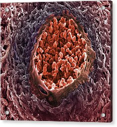 Ovarian Cancer Blood Vessel Acrylic Print by Steve Gschmeissner