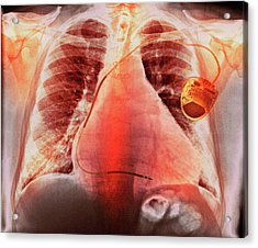 Pacemaker In Heart Disease Acrylic Print