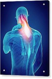 Person With Neck Pain Acrylic Print by Sebastian Kaulitzki/science Photo Library