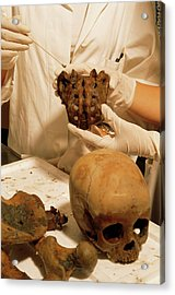 Pompeii Skull Being Sampled In A Lab Acrylic Print