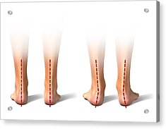 Pronation Of The Feet. Artwork Acrylic Print by Science Photo Library
