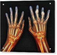 Rheumatoid Arthritis Of The Hands Acrylic Print