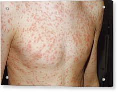 Rubella Rash Acrylic Print by Pr. Ph. Franceschini/cnri/science Photo Library