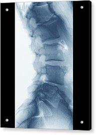 Scheuermann's Disease Acrylic Print