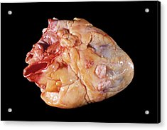 Secondary Heart Cancer Acrylic Print by Pr. M. Forest - Cnri