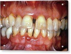 Severe Gum Disease Acrylic Print