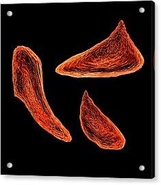 Sickle Cell Anaemia Acrylic Print
