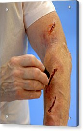 Simulated Arm Lacerations Acrylic Print