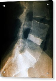 Spinal Fusion For Slipped Discs Acrylic Print by Zephyr