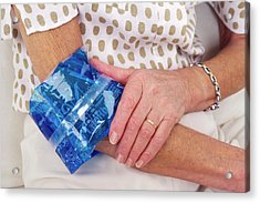 Sprained Elbow Acrylic Print by Lea Paterson/science Photo Library