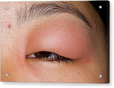 Swollen Eyelid After Insect Bite Acrylic Print by Dr P. Marazzi/science Photo Library