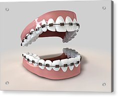 Teeth Fitted With Braces Acrylic Print by Allan Swart