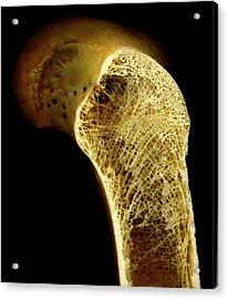 Thigh Bone Acrylic Print