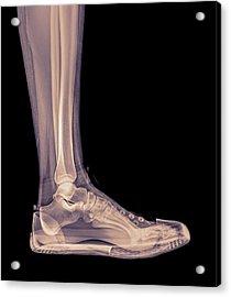 Trainers X-ray Acrylic Print