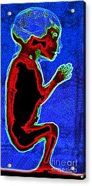 Unborn Fetus Acrylic Print by Howard Koby