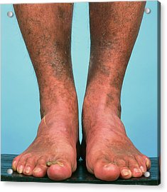 Varicose Vein Bruising Acrylic Print by Alex Bartel/science Photo Library