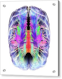 White Matter Fibres And Brain Acrylic Print by Alfred Pasieka