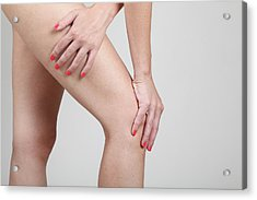 Woman Massages Her Painful Knee Acrylic Print by Photostock-israel