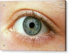 Woman's Right Eye Acrylic Print by Martin Dohrn/science Photo Library