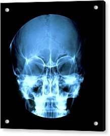X-ray Of 16-year-old Girl's Skull Showing Sinuses Acrylic Print