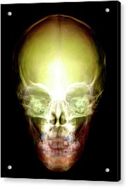 Young Child's Skull Acrylic Print