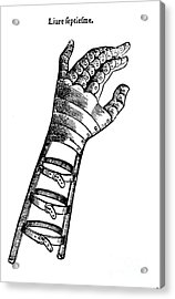 Artificial Hand Designed By Ambroise Acrylic Print by Science Source