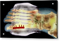 Big Toe After Bunion Surgery, X-ray Acrylic Print by