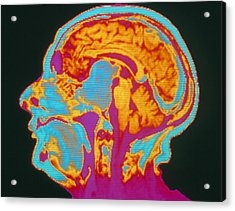 Coloured Mri Brain Scan Of A Pituitary Tumour Acrylic Print by Mehau Kulyk