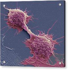 Dividing Cancer Cells, Sem Acrylic Print by Steve Gschmeissner