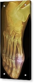 'gouty Foot, X-ray' Acrylic Print by Du Cane Medical Imaging Ltd