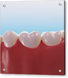 Healthy Teeth, Artwork Acrylic Print by Sciepro
