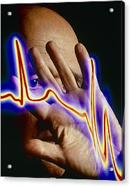 Heart Disease: Hand Held Up To Irregular Ecg Trace Acrylic Print by Mehau Kulyk
