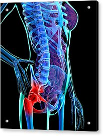Hip Pain, Conceptual Artwork Acrylic Print by Roger Harris