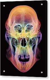 Orangutan Skull Acrylic Print by D. Roberts