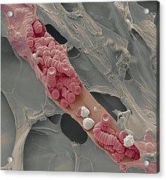 Ruptured Venule, Sem Acrylic Print by Steve Gschmeissner