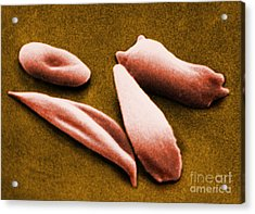 Sickle Red Blood Cells Acrylic Print by Omikron
