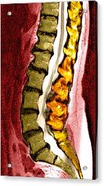 Spine Degeneration, Mri Scan Acrylic Print by Du Cane Medical Imaging Ltd