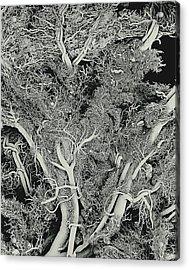 Blood Vessels, Sem Acrylic Print by Susumu Nishinaga