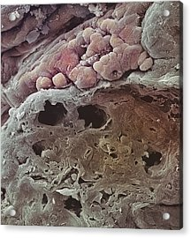 Colon Cancer, Sem Acrylic Print by Steve Gschmeissner