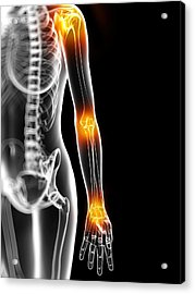 Joint Pain, Conceptual Artwork Acrylic Print by Sciepro