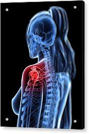 Shoulder Pain, Conceptual Artwork Acrylic Print by Sciepro