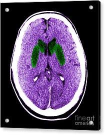 Brain Of A Cardiac Arrest Victim Acrylic Print by Medical Body Scans