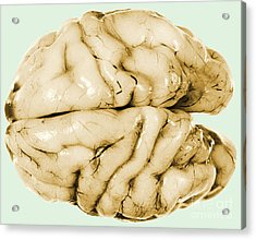 Brain Acrylic Print by Science Source