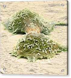 Dividing Cancer Cells, Sem Acrylic Print by Steve Gschmeissner